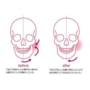 頭蓋骨自己矯正エクササイズ スカルコントロールDVD+骨格矯正用マウスピース