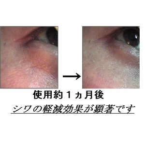 EGF美容液「スリーGFエッセンスPro」サイトカイン三種を高濃度配合!