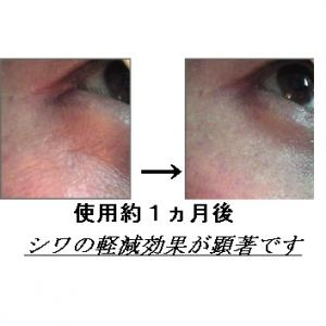 EGF・サイトカイン三種配合美容液 GFスリーエッセンス