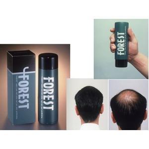 電動式増毛法 フォレスト 【ブラック】 植物繊維使用 容量 30g 約2〜3ヵ月分
